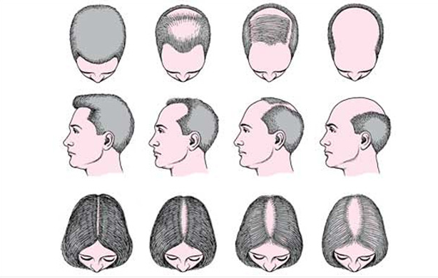 hair_loss_types